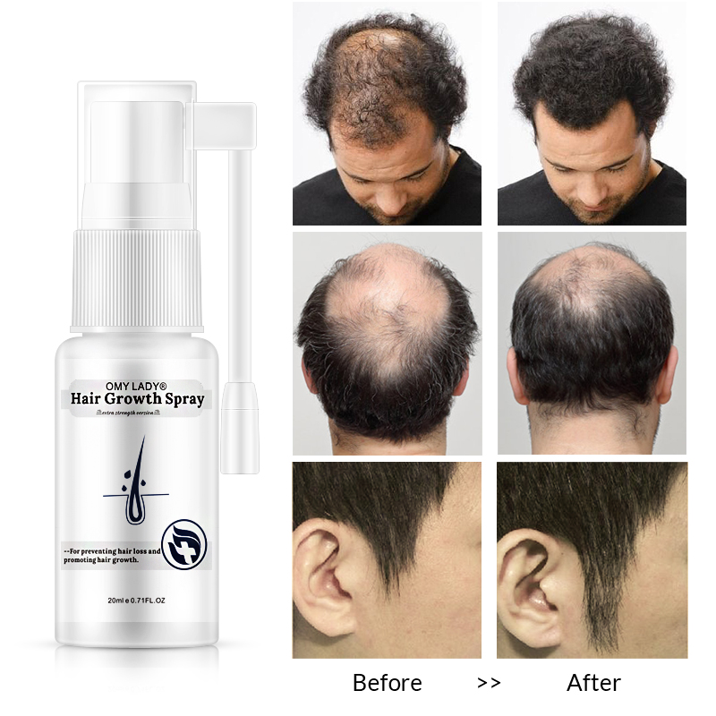 Image 4 - OMY LADY Anti Hair Loss Hair Growth Spray Essential Oil Liquid  For Men Women Dry Hair  Regeneration Repair,Hair Loss Products-in Hair Loss Products from Beauty & Health