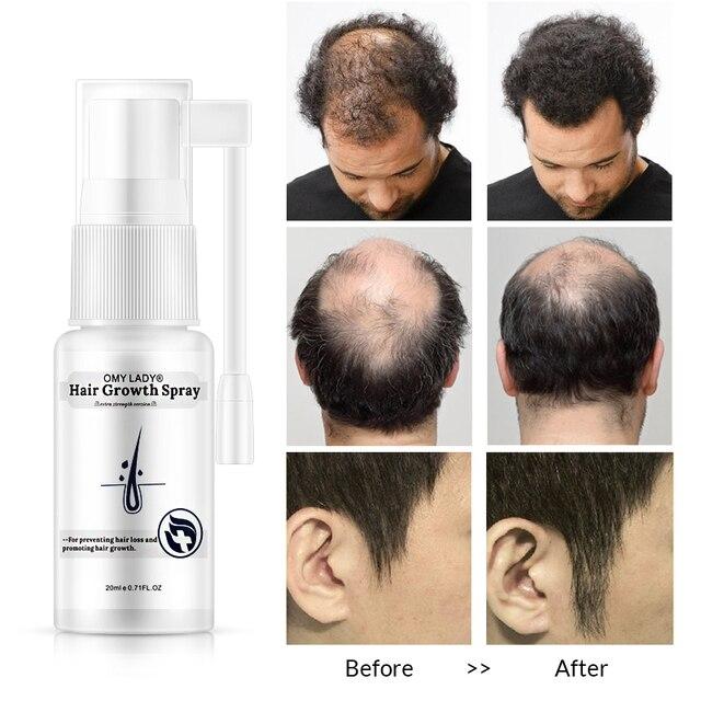 OMY LADY Anti perte de cheveux croissance des cheveux Spray huile essentielle liquide pour hommes femmes réparation de régénération des cheveux secs, produits de perte de cheveux