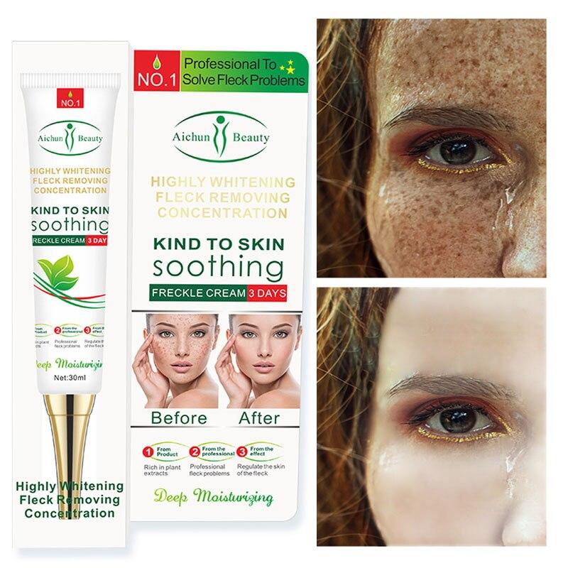 Effektive Bleaching Sommersprossen Creme 30g Entfernen Melasma Akne Spot Pigment Melanin Dunkle Flecken Bleaching Feuchtigkeitsspendende Creme Hautpflege