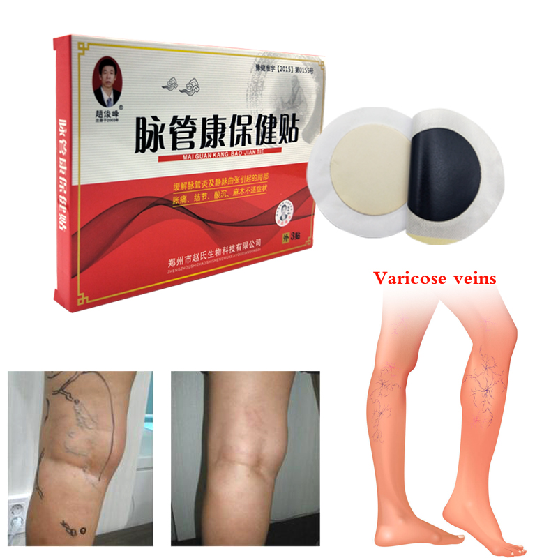 4pcs Spider Veins Varicose Treatment Plaster Varicose Veins Cure Patch Vasculitis Natural Solution Herbal Patches