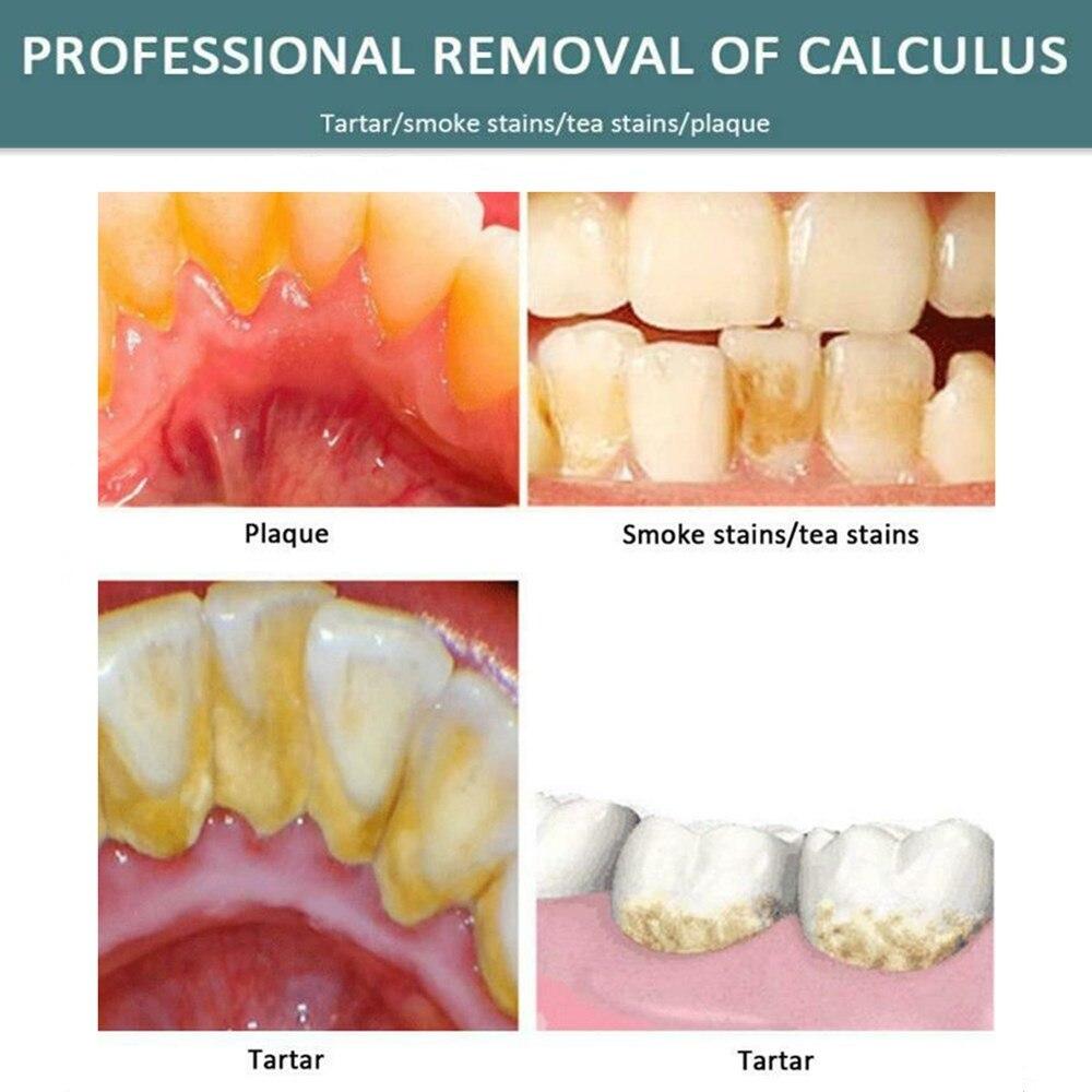 dente removedor de cálculo dentes branqueamento higiene
