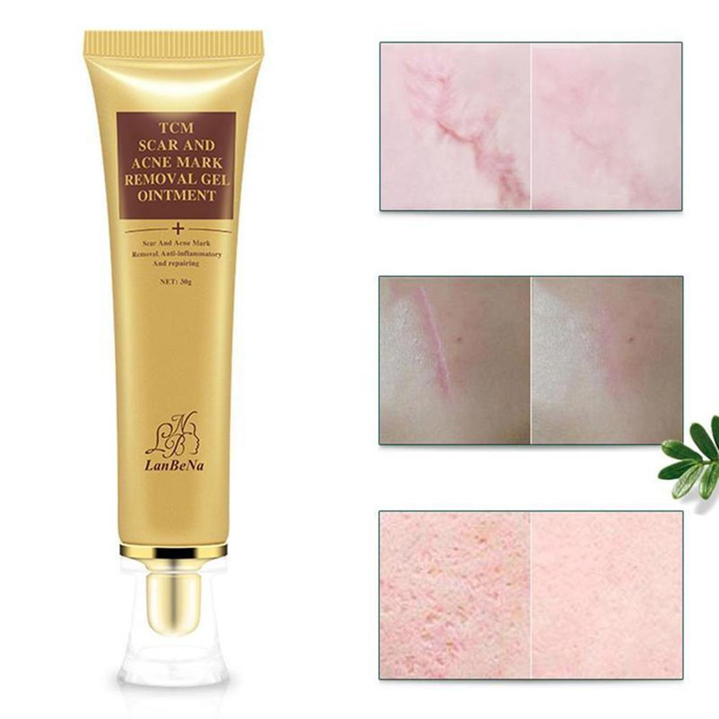 Natural Herb Moisturizing Scar-removing Gel Scar Acne 30g As Picture Removal All Skin Types Ointment Gel
