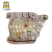 Dentes reparação neural implante dental modelo patológico dentista estudantes comunicação, aprendizagem, pesquisa ensino de doença oral
