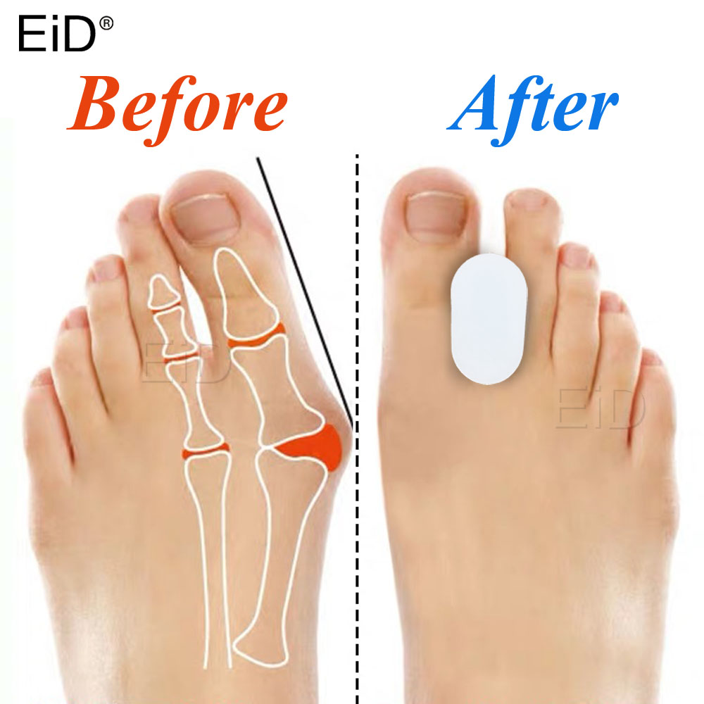 EiD 2Pcs Silicone Toe Separator Bunion Splint Hallux Valgus Orthosis Correction Overlapping Spreader Foot Protector Inserts