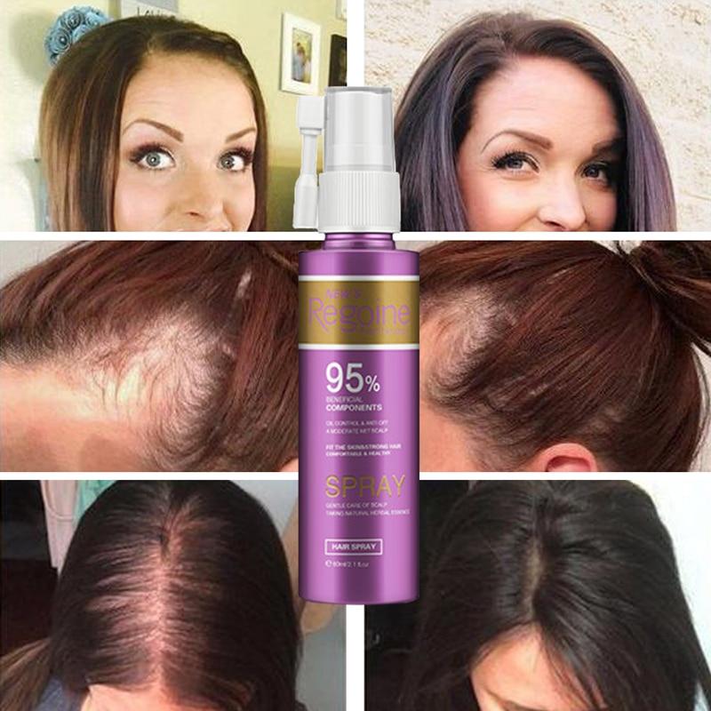Anti Hair Loss Essence Hair Growth Treatment Oil Fast Thick Hair Eyebrows Support Natural Healthy Hair Treatment For Women