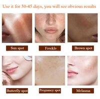 CHUMOLEE Alpha Arbutin 5% Whitening Freckl Cream Melasma Pregnancy Remove Acne Dark Spots Melanin Pigment Moisturizer Face Care 5