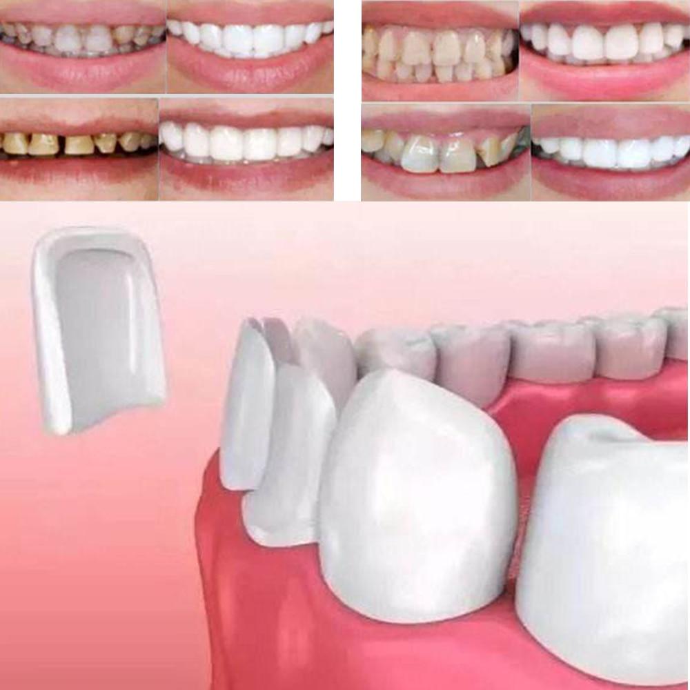 50Pcs Dental Veneers Teeth Ultra-Thin Whitening Veneers Resin Teeth Upper Anterior Teeth Beauty Health Tools