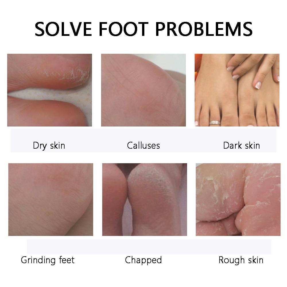 Foot Mask Exfoliating