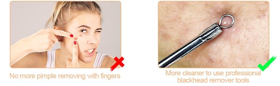 de aço inoxidável espinha acne ferramenta kit