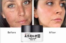 Отбеливание уход за лицом крем восстановление увядание веснушки удаление темный пятна меланин средство для удаления осветление лицо крем