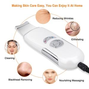 Image 4 - Beauté étoile ultrasons peau épurateur visage nettoyant profond visage nettoyage pores Peeling points noirs enlèvement ultrasons peau épurateur
