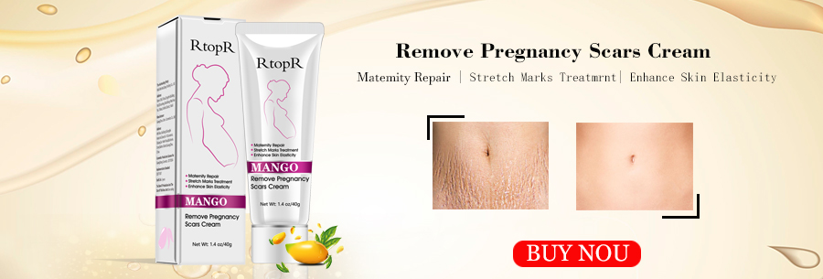 Rtopr Stretch Mark Cream Mango Remove Pregnancy Scar Mark Elleperi
