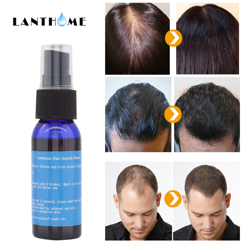 Pilatory Sunburst Hair Growth Products for Men Anti Hair Loss Baldness Hair Growth Spray Alopecia Treatment Hair Fall