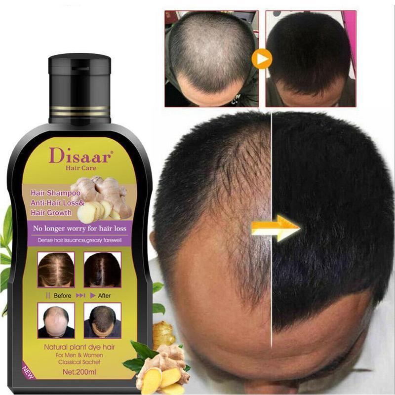 200ml Disaar Professional Anti-hair Loss Shampoo Preventing Hair Loss Chinese Hair Growth Product Hair Treatment For Men Women