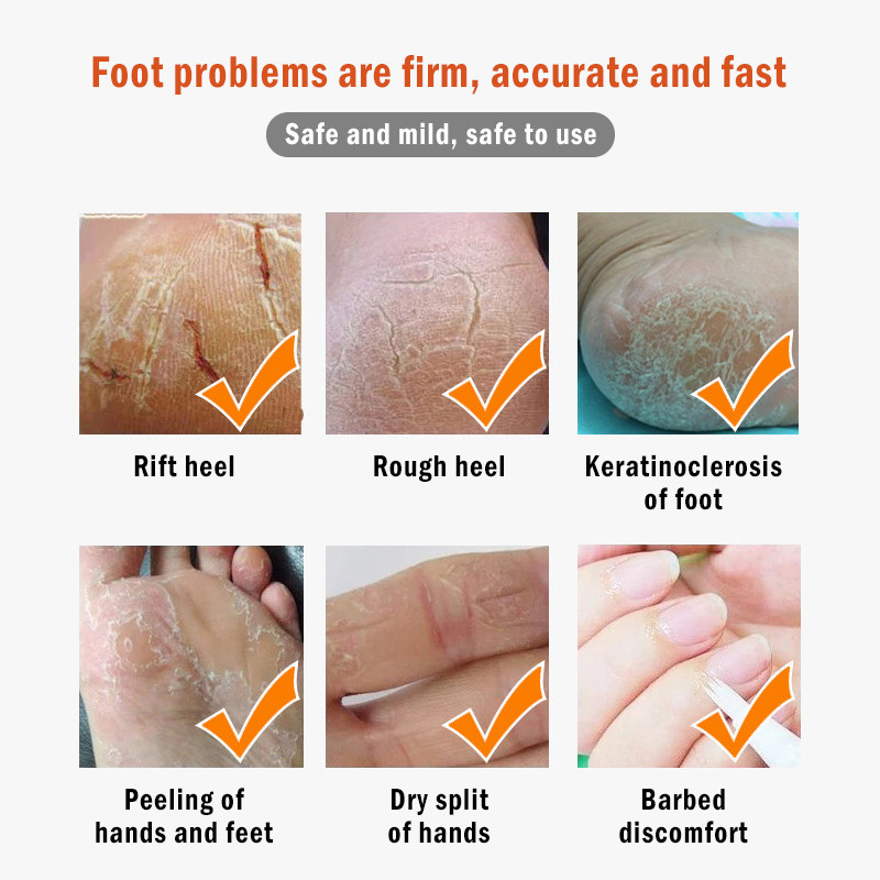 Image 4 - Cracked Heel Cream Feet Remove Dead Skin Soften Foot Anti Drying  Cracked Heal  Callus Repair Cream Foot Care Pedicure Tools-in Foot Care Tool from Beauty & Health