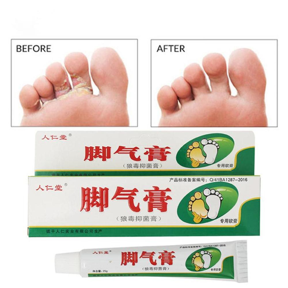 Ifory Beriberi Treatment Cream Chinese Herbal Anti Fungal Infection Foot Repair Cream Relieve Itching Skin Cleaning Health Care