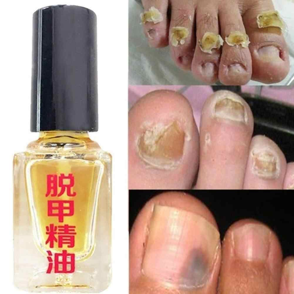 3 วัน Effect เชื้อรา Removal Liquid Fungal NAIL Treatment Caring เล็บ Bright Foot Infection Anti Onychomycosis Y0P0