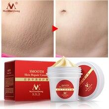 Pregnancy cream Removes Maternal Skin Repair Body Cream Removes Postpartum Scar Care Gentle Moisturizing Smooth skin