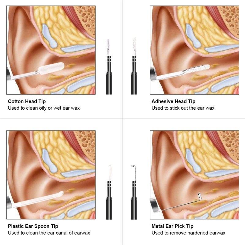 3-In-1-USB-Micro-Type-C-Digital-Led-Otoscope-Ear-Camera-Scope-Earwax-Removal-Kit