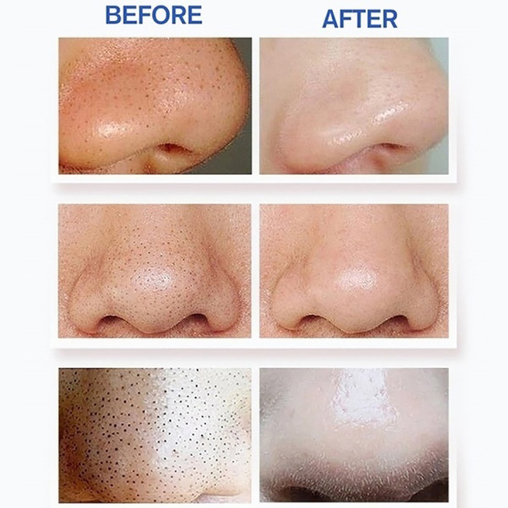 Ultimate SaleSkin-Care-Tool Remove Facial-Cleaner Vaccum-Suction Blackhead-Acne-Removal Pore-Spot