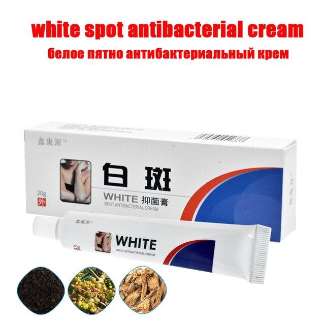 20g médico chino punto blanco enfermedad crema pigmento melanina La linimento DE LA PIEL el Vitiligo leucoplasia en el tratamiento de las enfermedades