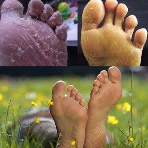 Image 4 - New 2019 Fungal Nail Treatment Detox Foot Soak Long Term Relief Athletes Foot Skin Cracking Psoriasis Peeling Beriberi