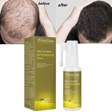 New Fast Hair Growth Essential Oil 30ml Hair Loss Products Treatment Regrowth Gi