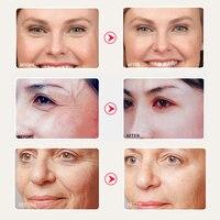 SOMILD Korean SkinCare Set Treatment Detox Bubble Mask Anti Aging Wrinkle Remove Face Cream Whitening Moisturizing Facial Lotion 5