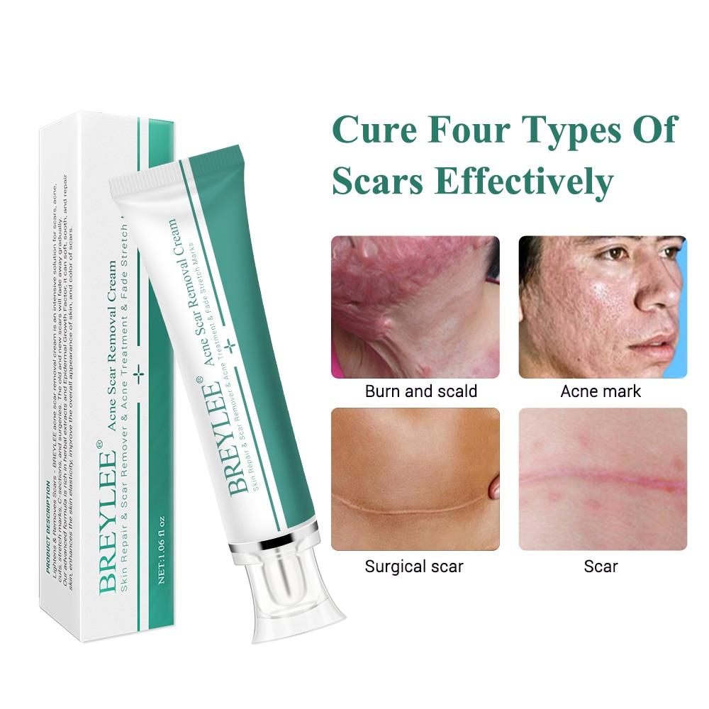 30g Acne Scar Pregnancy Stria Scar Cream Black Spot Scar Removal Facial Blackhead Acne Skin Health Care Cream Patches Aliexpress