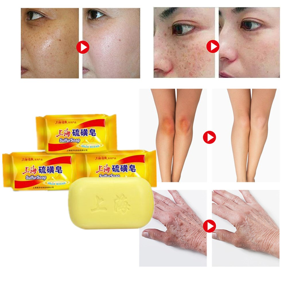 Vegetable Formula For Antifungal Dermatitis Rosacea Rhinoeczema Psoriasis And Scabies Of Old Brand Sulfur Soap In China