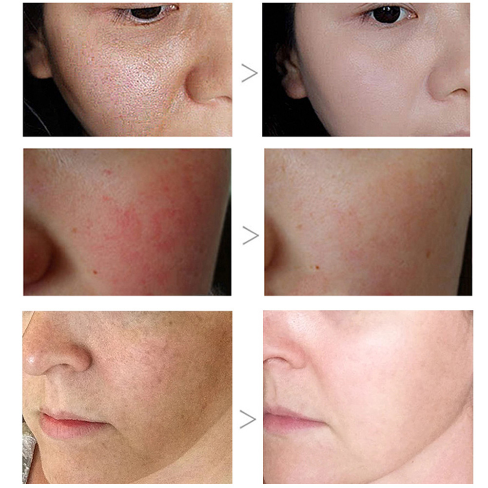 Greenlouch Pore Corset Serum Pore Tightening Essence Deep Cleansing Skin Care Product WH998 2