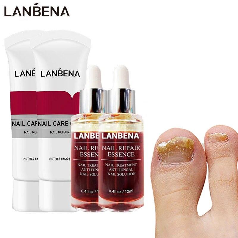 LANBENA крем для удаления грибка ногтей набор геля 4 шт. Лечение грибка ногтей против инфекции паронихия онихомикоз эссенция Уход за ногтями