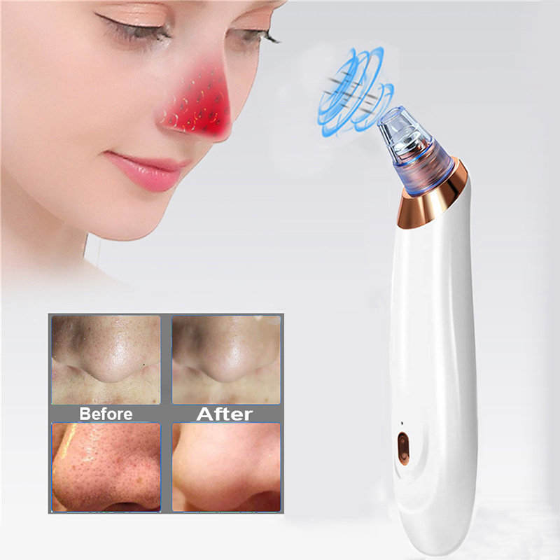 Vytalbrush Blackhead Remover Face Skin Care Pore Acne Pimple Removal Vacuum Suction Tool Dermabrasion Machine Dropshipping