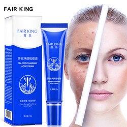 FAIR KING Acne Treatment Acne Scar Removal Serum Anti Acne Face Essence Cream Oil Control Shrink Pores Whitening Skin Care 15g