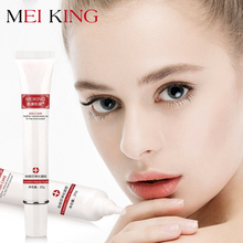 купить MEIKING Face Serum Acne Scar Gel Cream Remove SKin Care Acne Treatment Shrink Pores Blemish Facial Spot Whitening Moisturizers дешево