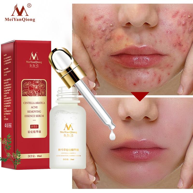 Acne Treatment Face Serum Centella Asiatica Oil Control Shrink Pores Scar Essence Whitening Moisturizer Skin Care MeiYanQiong