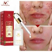 Tratamento da acne rosto soro centrella asiatica controle de óleo encolher poros cicatriz essência clareamento hidratante cuidados com a pele meiyanqiong