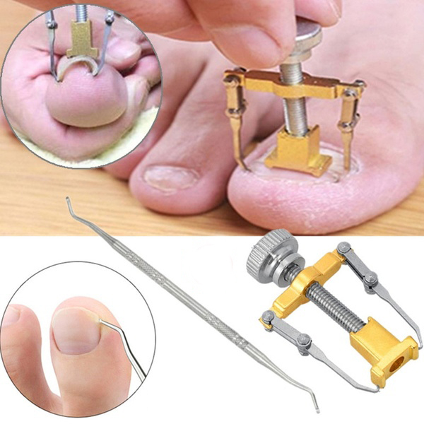 Ingrown Toe Nail Fixer Pedicure Recover Embed Toenail Correction Lifter Tool Set