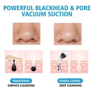 Image 4 - Odsysacz do zaskórników porów odkurzacz twarzy zaskórnika usuwanie trądziku narzędzia 3 kolory jasne Photon odmładzanie pielęgnacja skóry
