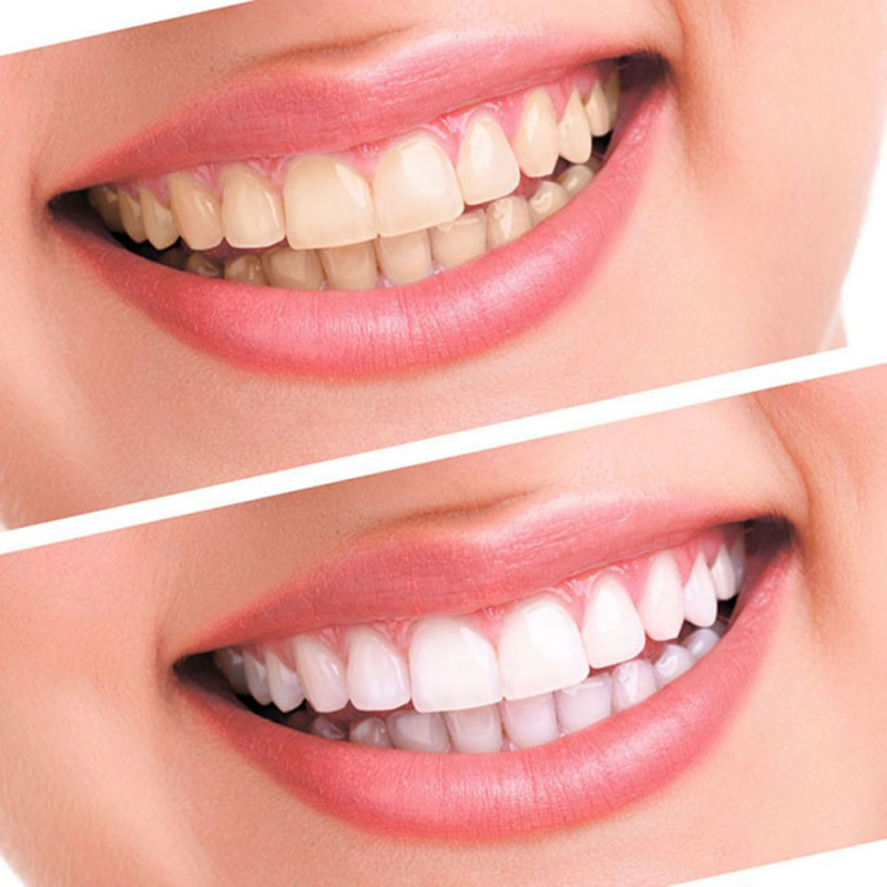 Teeth Whitening 44 Peroxide Dental Bleaching System Oral Gel Kit Tooth Whitener Dental high quality HOT SALE in Teeth Whitening from Beauty Health