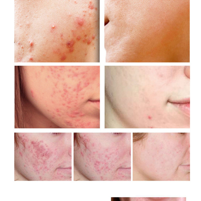Effective Acne Removal Cream Acne Treatment Fade Acne Spots Oil Control Shrink Pores Whitening Moisturizing Acne Cream Skin Care 4