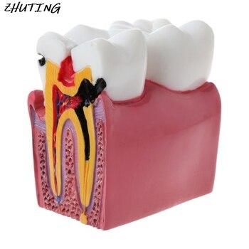 6 Times Dental Caries Comparation Anatomy Teeth Model for Dental Anatomy Lab Teaching Studying Researching Tool 1pcs dental teeth model 6 times caries comparation study denture tooth models dentist studying and researching dentistry product