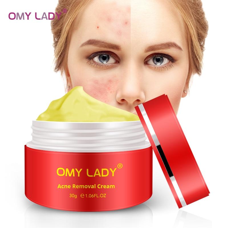 OMY SENHORA Poderoso Multi Efeito extrato Creme Elimina rugas Remover Cicatriz Acne tratamento da acne para o Rosto Anti envelhecimento Cuidados gel