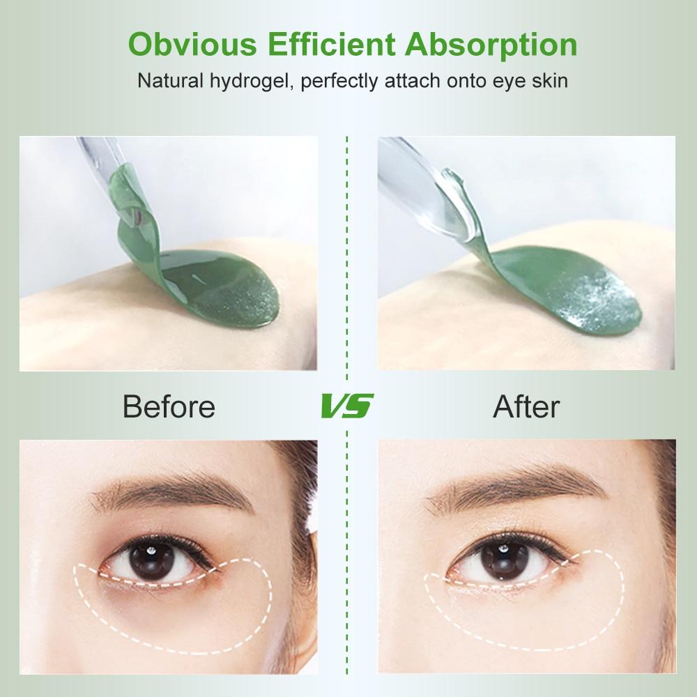 106477-绿藻眼膜-03
