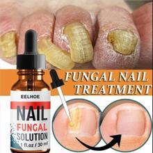 Fungal Nail Repair Serum Anti Paronychia Onychomycosis Care Foot Nail Fungus Removal Gel HOT SALE Foot Nails Care wholesaleTSLM1