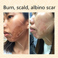 Remove inflammation and repair the post operation set of albino scar burn