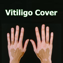 Cover Vitiligo Patches Waterproof Instant Skin Leucoderma Makeup Coating Concealer Pen on Face Arm Body for Women Men Kids 1pc