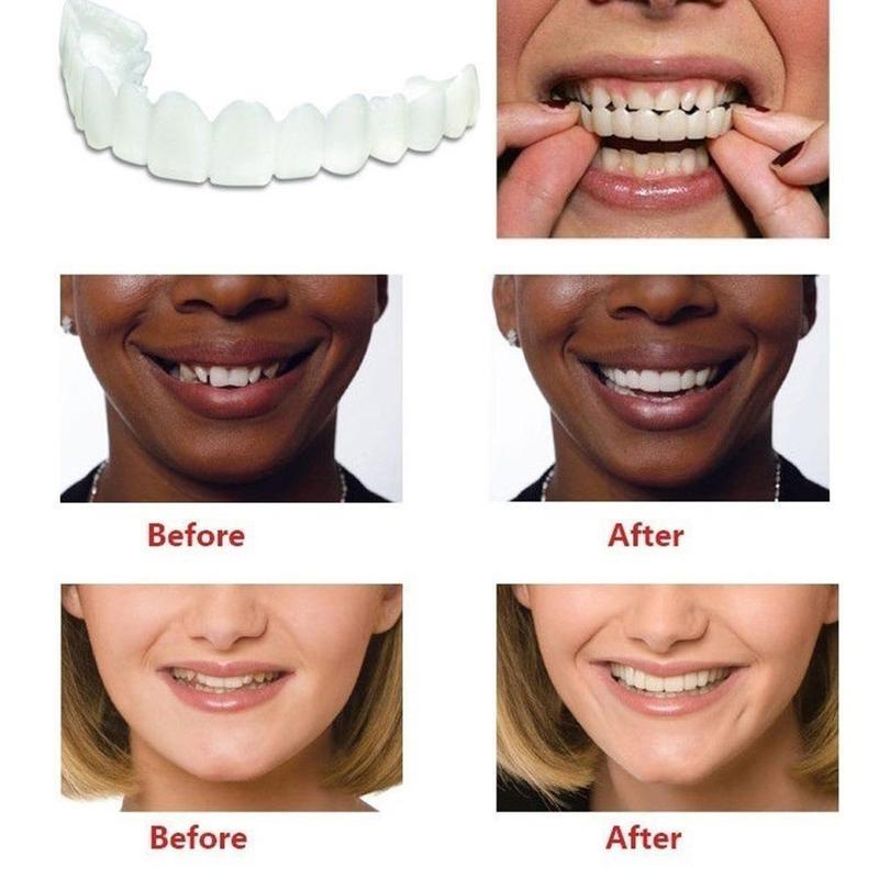 Teeth Veneers Whitening Snap On Smile Teeth Cosmetic Denture Tooth Instant Hygiene Smile Teeth Cover Perfect Oral Fake Tool V8X0