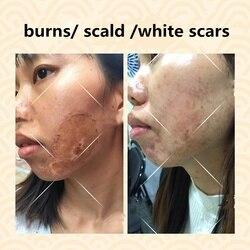Наборы крема для удаления шрамов, чистая китайская медицина, устраняет воспаления, восстанавливает белые рубцы/ожоги/хирургические рубцы