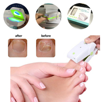 2020home Use Cure Toe Nail Fungus Blue Light and Laser Light Therapy Device Onychomycosis Antifungal Lllt Physiotherapy